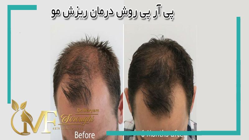 prp سر (جهت درمان ریزش مو)